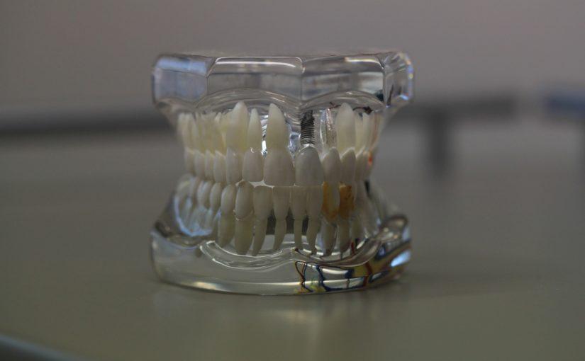 Zła metoda żywienia się to większe braki w zębach oraz dodatkowo ich brak